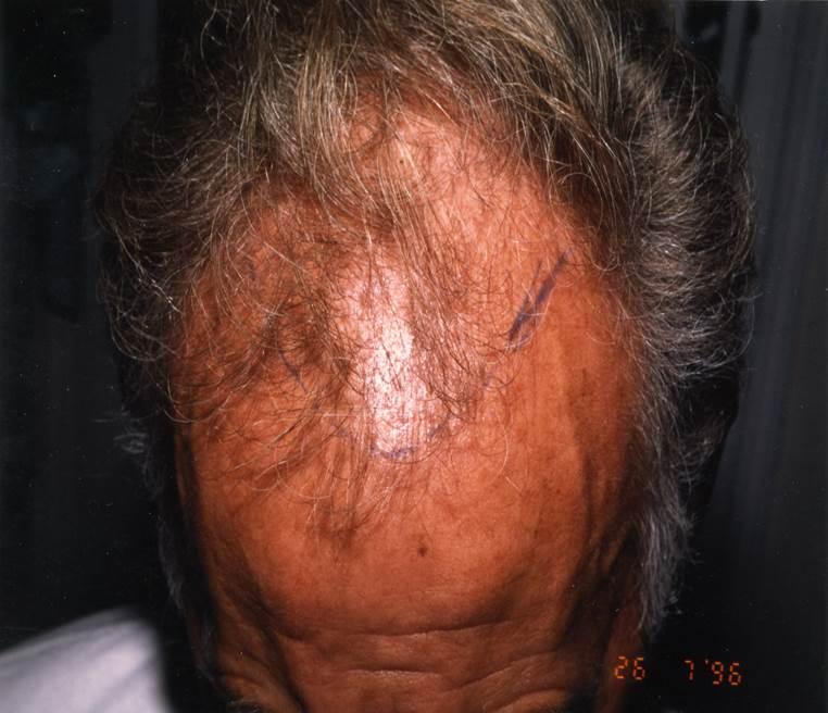 Prix implant capillaire, greffe de cheveux